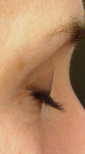 Lashes treated with Lumigan/Latisse before 152211