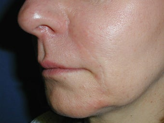 Radiesse for Nasolabial Folds after 100935