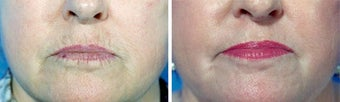 Chemical Peel before 652172