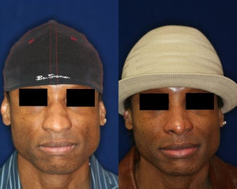 Rhinoplasty and Nostril Narrowing before 223656