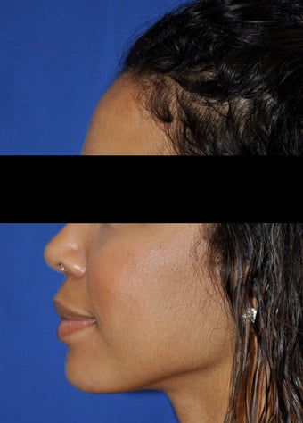 African American Rhinoplasty after 364920