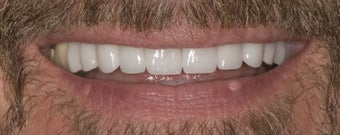 Porcelain Crowns  after 374733