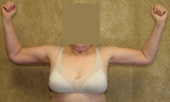 Brachioplasty or arm tuck in los angeles 583674