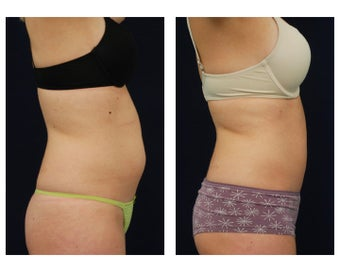 Liposuction 396995