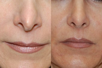 Non-Surgical Rhinoplasty with Silikon-1000 for nostril asymmetry and a pinched tip after previous Rhinoplasty Surgery. before 361231