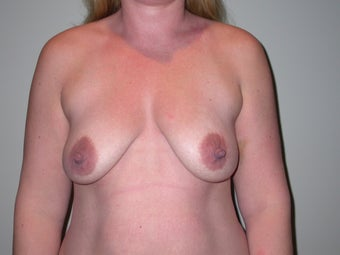 Breast lift, abdominoplasty, liposuction before 273304