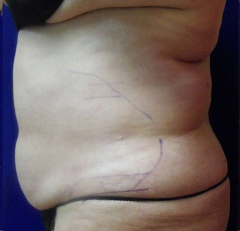 VASER Shape to Abdomen after 433051