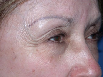 Before & After Botox Treatment before 48604