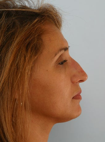 Non Surgical Rhinoplasty Juvederm Ultra Plus before 260324