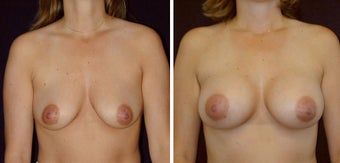 28 year old female, breast augmentation before 628312