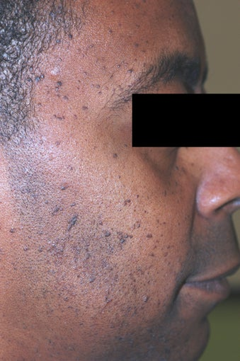 Los Angeles Mole Removal - Dermatosis Papulosa Nigra before 542716