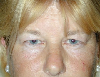 Endoscopic Brow Lift and Blepharoplasty before 249007