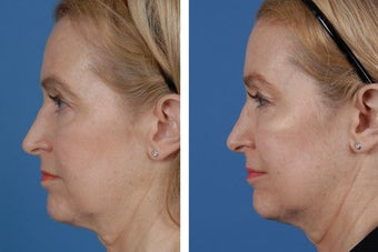 Restylane and Botox Cosmetic after 356495