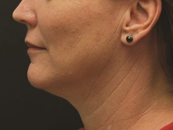 Neck Lift and Laser-Assised Lipocontouring after 406733