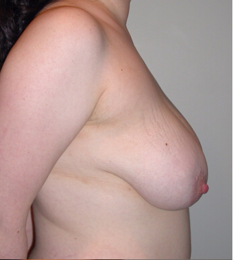 Vertical Breast Lift before 275504