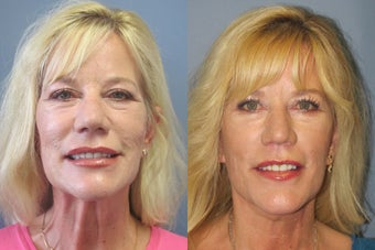 Lite Lift™, neck lift after 523722