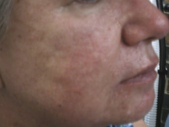 Severe Acne before 271995