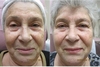 Photofacial IPL before 315017