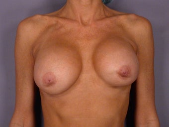 Breast Revision before 307240