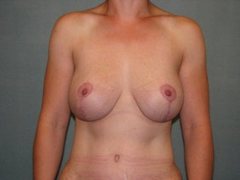 breast lift with augmentation after 403874