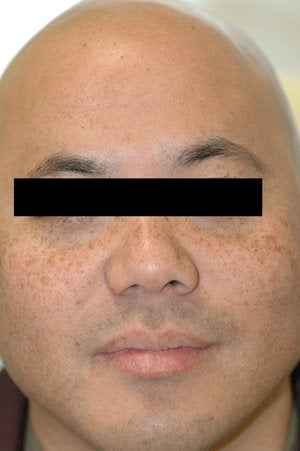 Asian Skin Freckle Removal before 199403