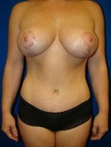 Breast Augmentation Mastopexy and Abdominoplasty after 391288