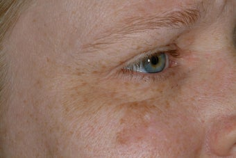 Non-surgical eye rejuvenation before 95918
