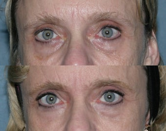 Fraxel repair with C02/Erbium lasers for upper lip wrinkles before 104307