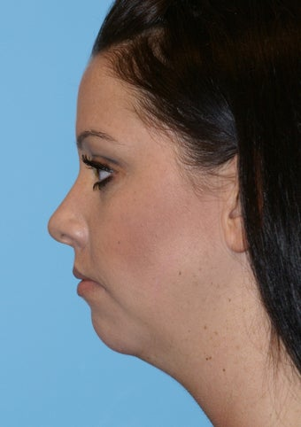 Chin Implant before 581194