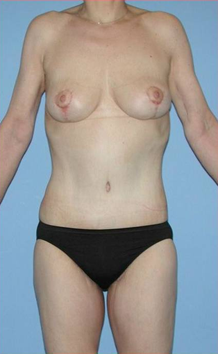 Complete Weight-Loss Makever (Body Lift, Breast Lift, Arm & Thigh Lift) after 533993