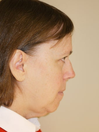 Neck Liposuction before 517206