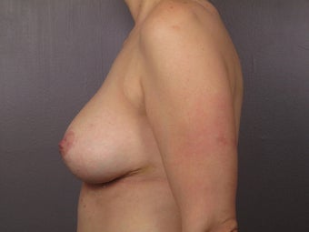 Breast Revision after 307219
