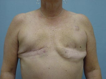 Breast Reconstruction before 98013