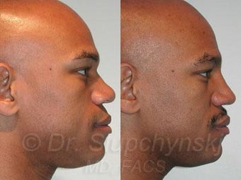 African American Rhinoplasty after 374019