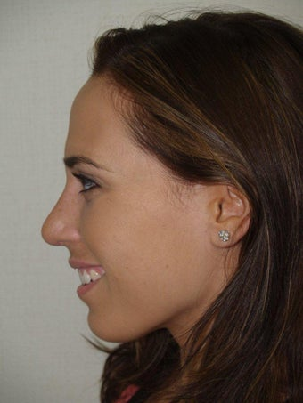 Rhinoplasty after 229058