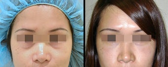 Lower Eyelid(Blepharoplasty) Surgery before 652502