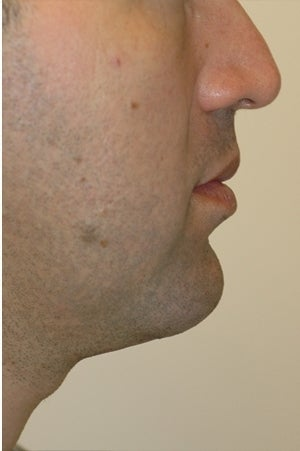 Chin augmentation, neck liposuction and neck muscle tightening. after 277315
