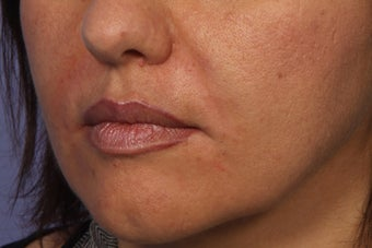 Radiesse to Smile Lines (nasolabial folds) 308319