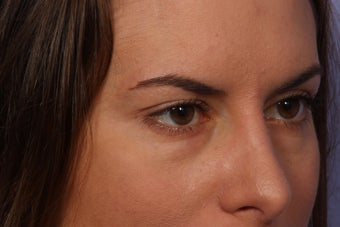 Restylane to Tear Troughs (under eyes) 308348