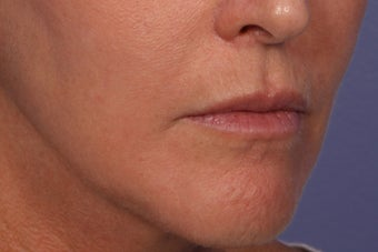 Botox and Juvederm Ultra Plus to Upper Lip