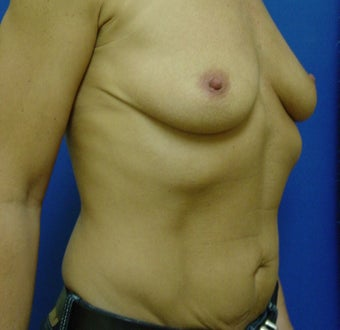 Breast Augmentation Transaxillary before 316997