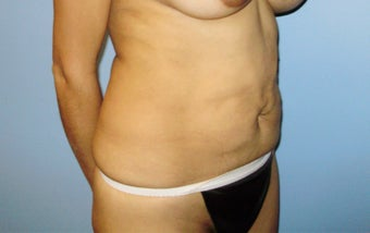 Abdominoplasty 317116