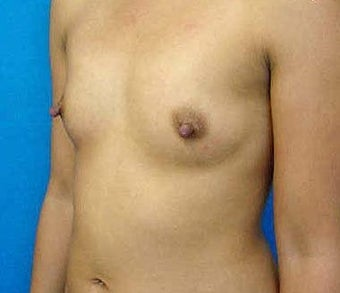 Breast Augmentation  317789