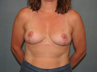 Breast Lift 334556