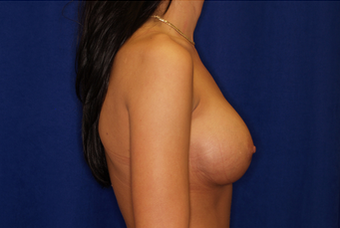 Breast Implant Revision 335785