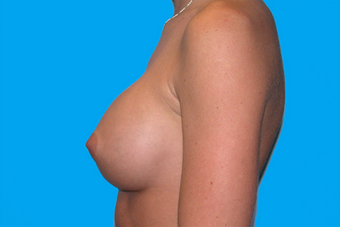 Breast Augmentation 335916
