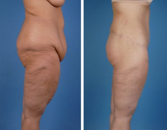 Lower Body Lift and Thighplasty