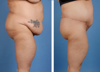 Lower Body Lift and Extended Tummy Tuck 335991