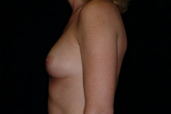 Breast Augmentation 336384
