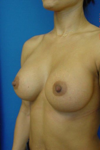 Breast Augmentation 338418